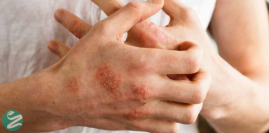 درماتیت استازیس یا التهاب پوست