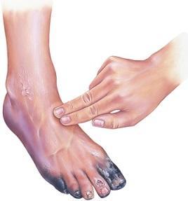 مراقبت  از زخم پای دیابتی