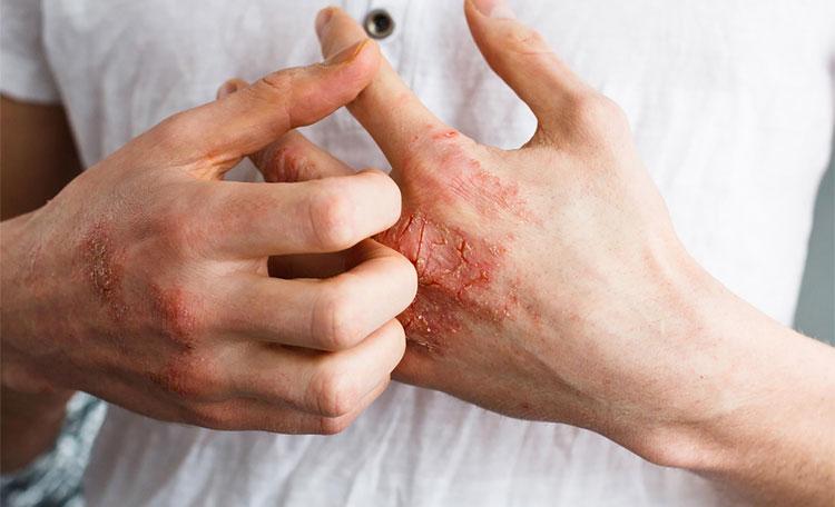 اختلالات و بیماری های پوستی